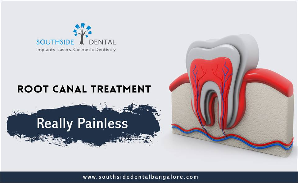 root-canal-treatment-in-bangalore