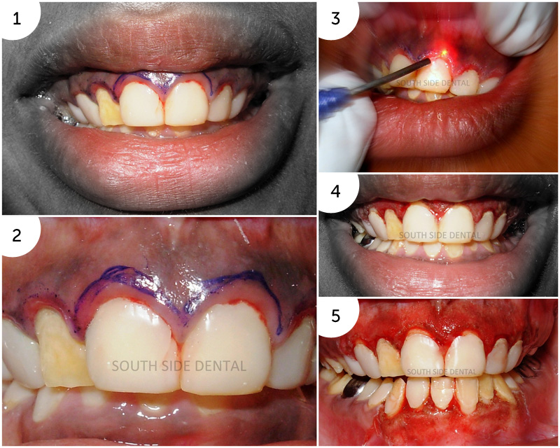 Laser Assisted Gingivectomy and Depigmentation