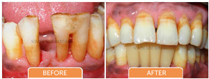 before and after single tooth replacement bangalore, karnataka, india