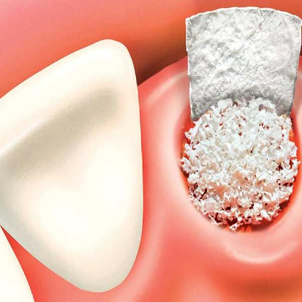 Bone grafting and GBR