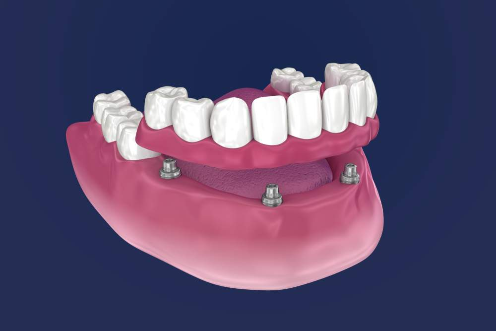 dental implants, bangalore, karnataka, india