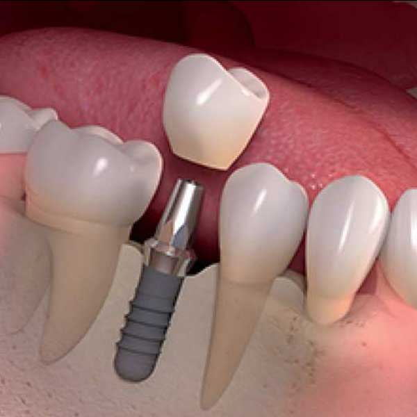 Immediate placement of teeth on implants