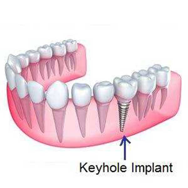 Keyhole / Flapless Implants