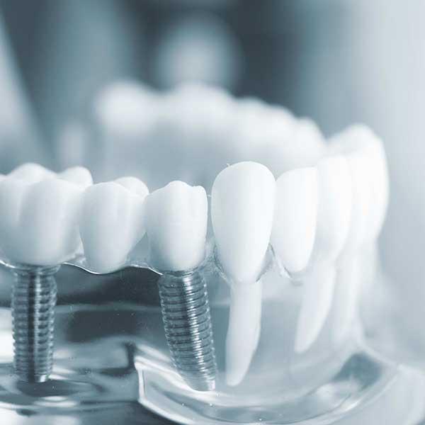 Multiple teeth implant