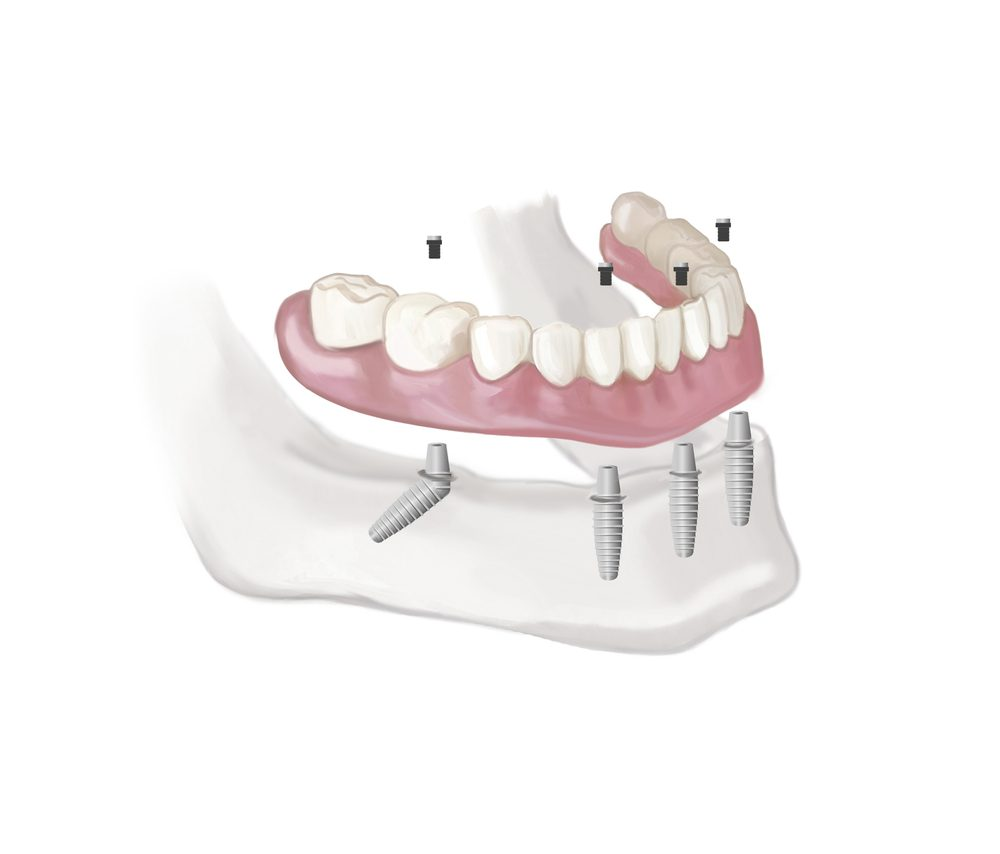 full mouth fixed teeth dental implants in bangalore, karnataka, india