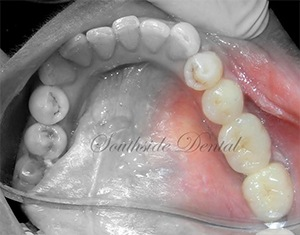 after dental bridges