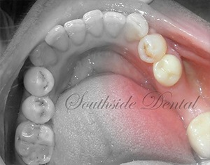 before dental bridges