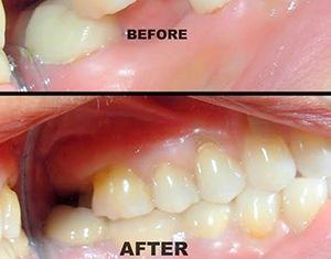 dental bridges karnataka
