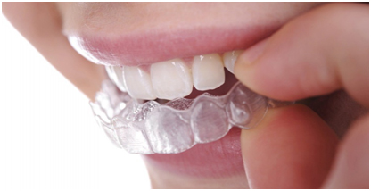 invisible braces in bangalore, karnataka, india
