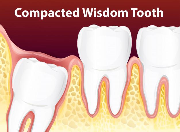 wisdom tooth removal in bangalore, karnataka, india