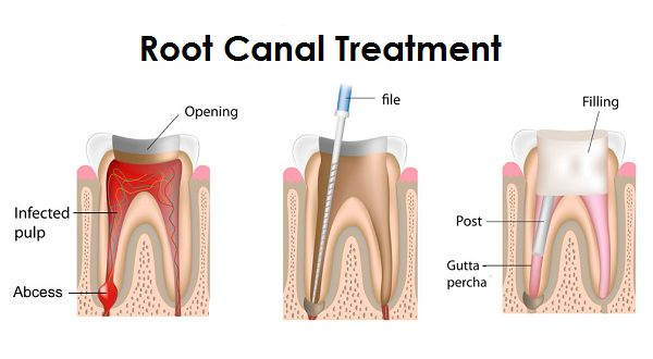 root canal treatment in bangalore, karnataka, india