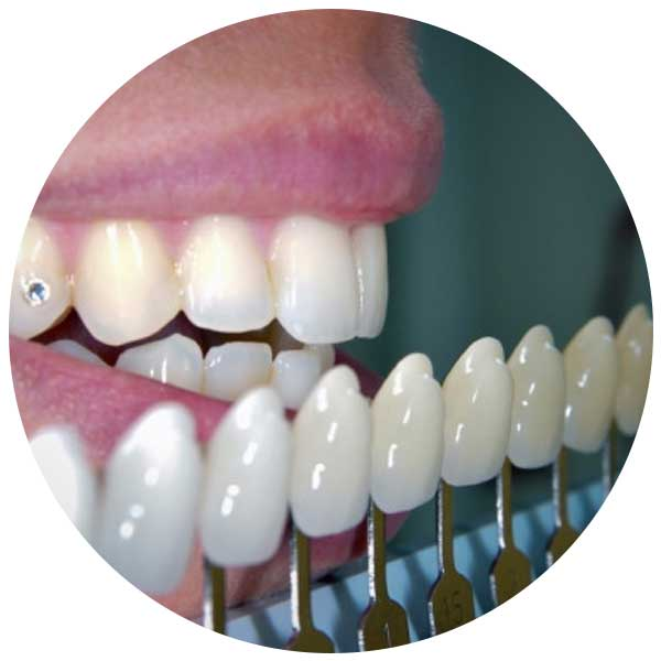 cosmetic-fillings