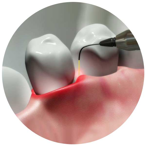 laser root canal treatment bangalore